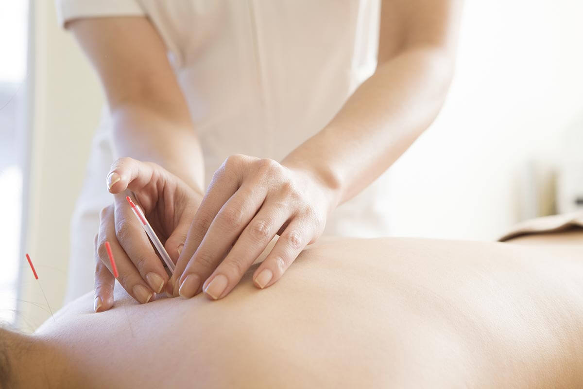 鍼灸師は女性が活躍しやすい職業